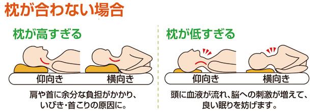 枕が合っていない場合の症状